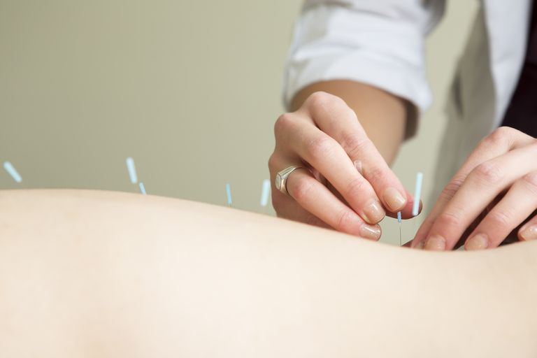 Hands of acupuncture therapist inserting a needle