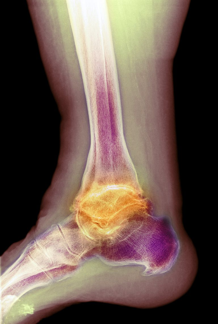 Osteoarthritis of the ankle. Coloured X-ray of the ankle of an 80 year old female patient with severe osteoarthritis.