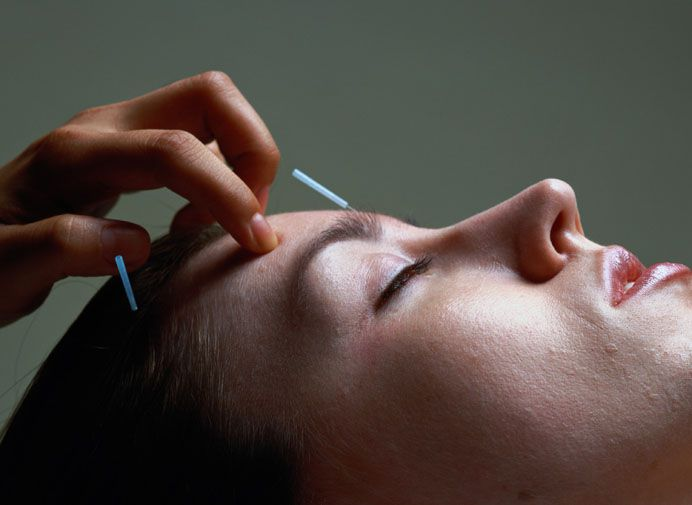 Picture of a woman receiving acupuncture treatment.