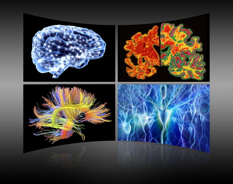 Brain imaging research is useful to understand social anxiety.