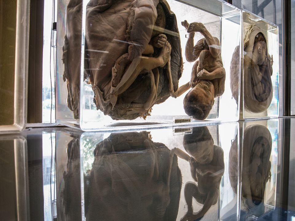 Deformed exhibits, Siriraj Medical Museum, Thailand