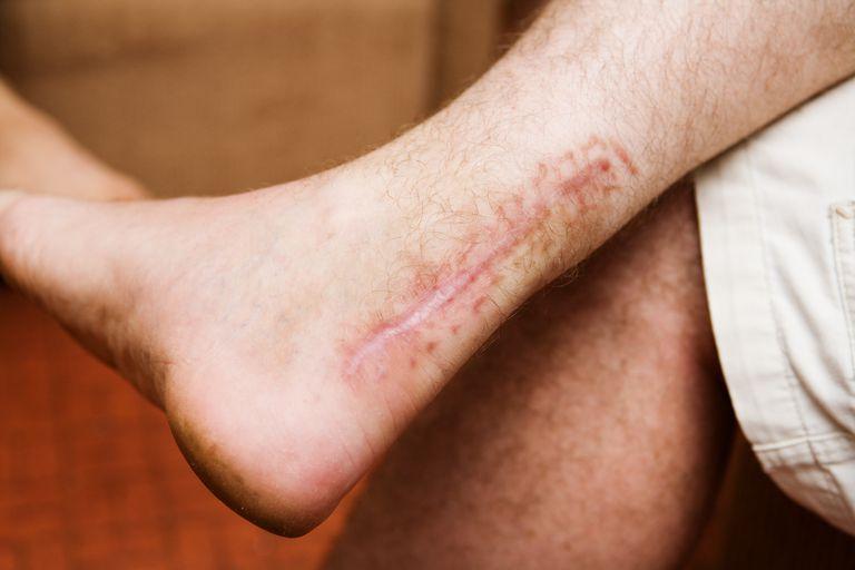 Achilles tendon scar