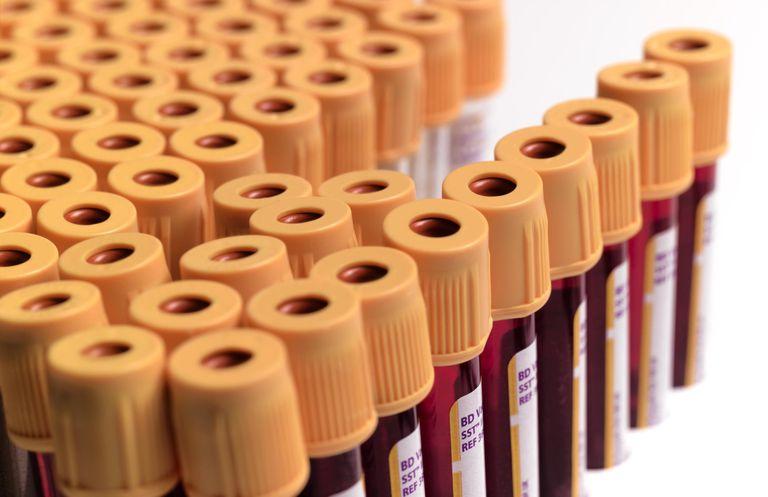 HIV False Positives