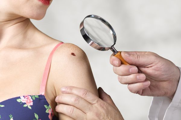dermatologist examining young woman's mole