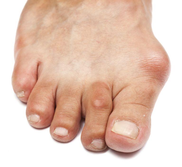 toe deformity bunion hammer