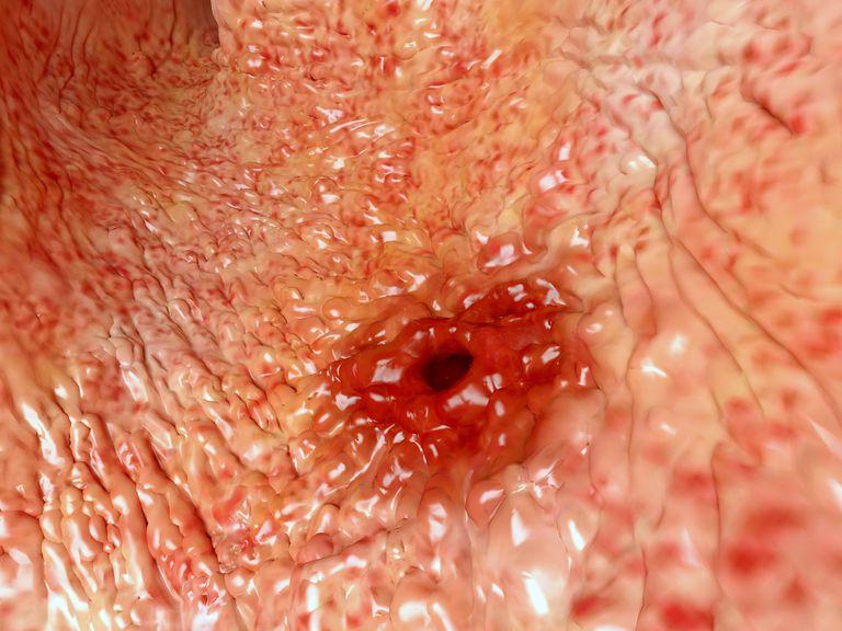 Anatomy Of A Peptic Ulcer