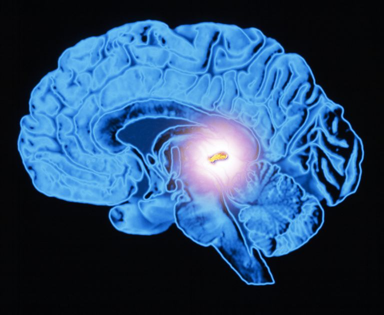 Melatonin from the Pineal Gland May Prevent Migraines