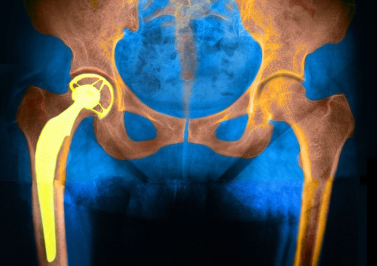 Hip replacement on x-ray