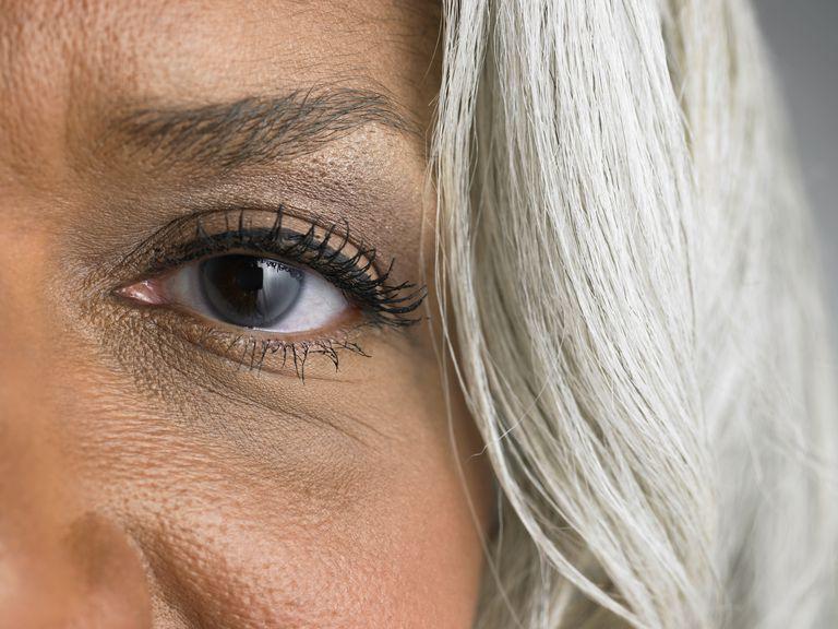 dark-eye-circles.jpg