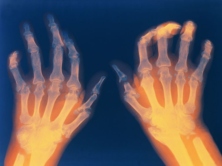 X-ray showing rheumatoid arthritis in hands