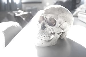 Skull on hospital table