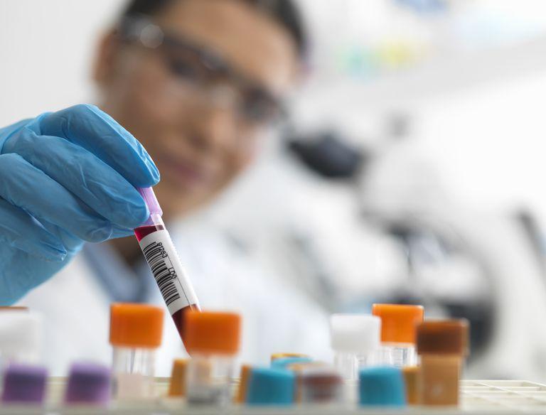 celiac disease blood test