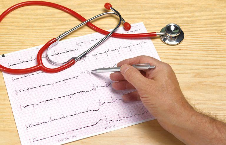 Sindrome del qt largo, dr josep brugada, arritmia, taquicardia SQTL, muerte subita,