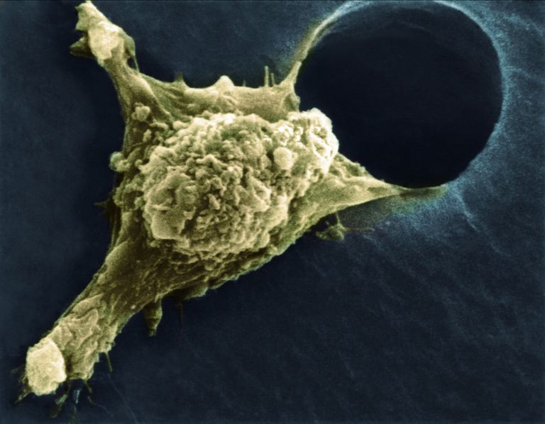 Cancer Cell Metastasis