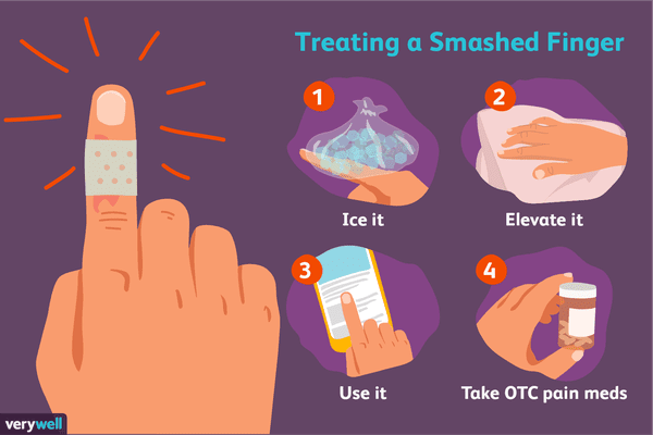 How to Treat a Smashed Finger