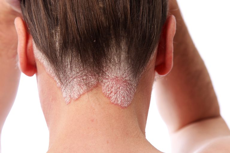 Woman showing her scalp psoriasis