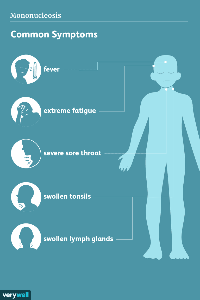mono symptoms and adults