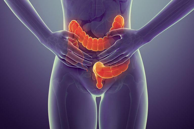 Colon cancer symptoms