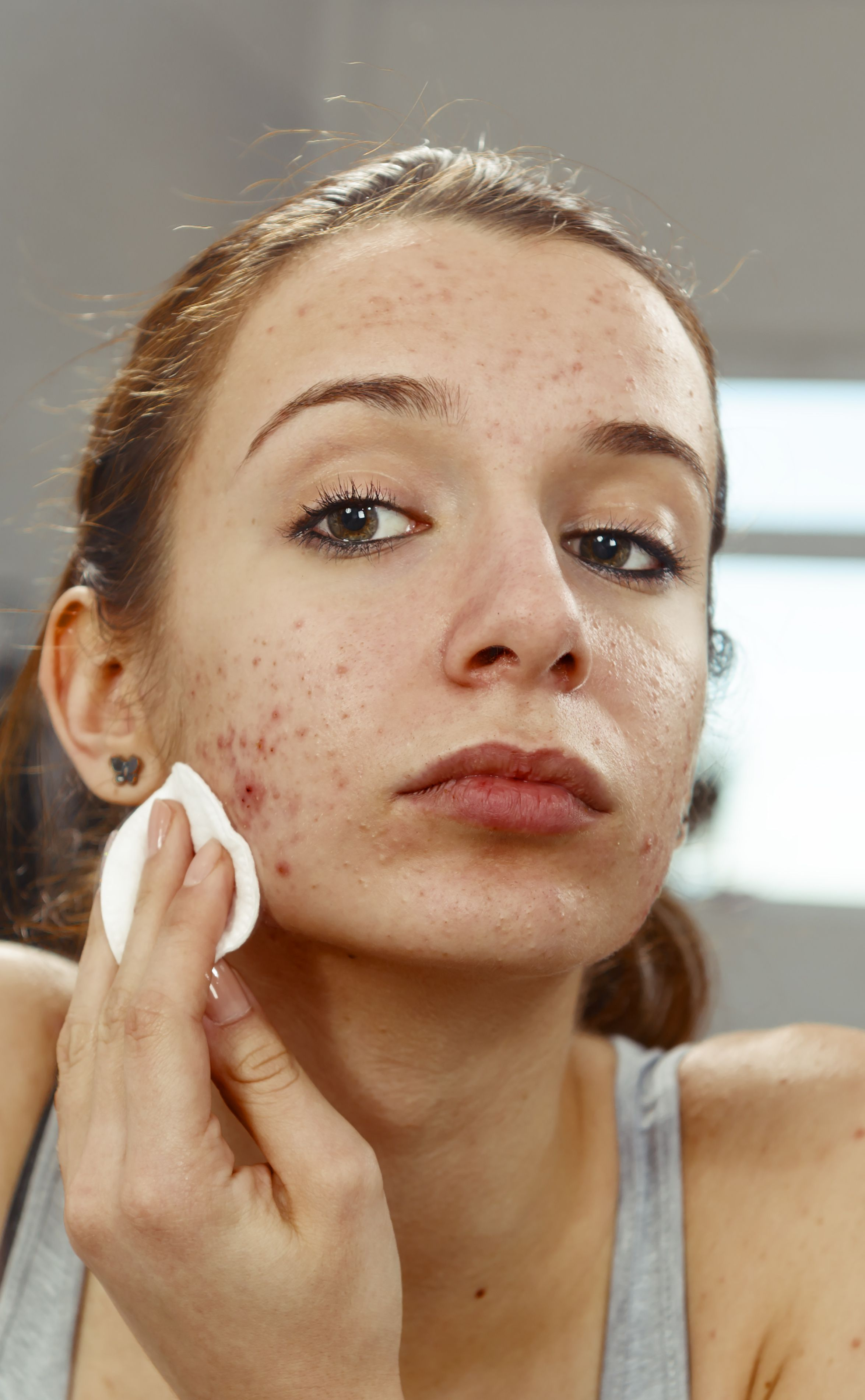 Pimples Come Back After Ending Acne Treatment
