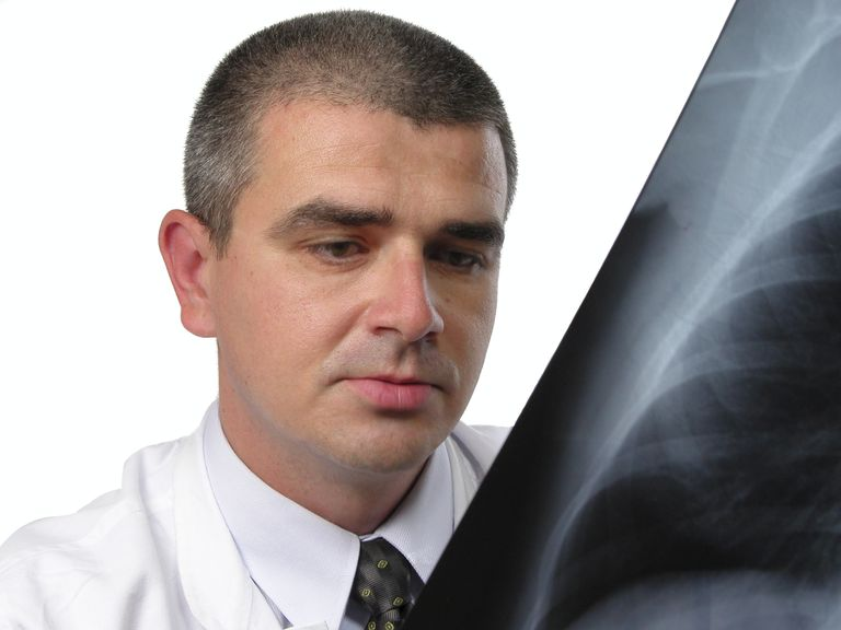 physician looking at an x-ray with a malignant pleural effusion