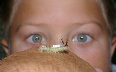 Ringworm Symptoms Causes Diagnosis Treatment