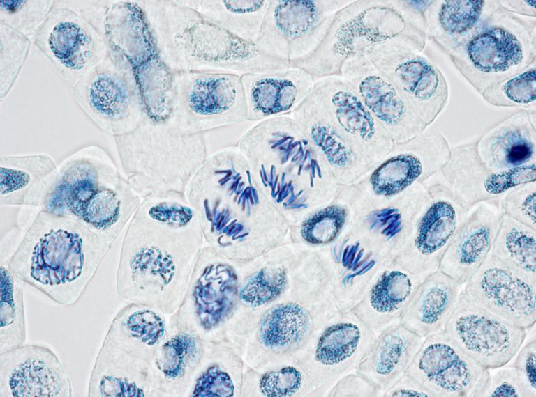 Microscope image of plant cells with three nuclei in anaphase