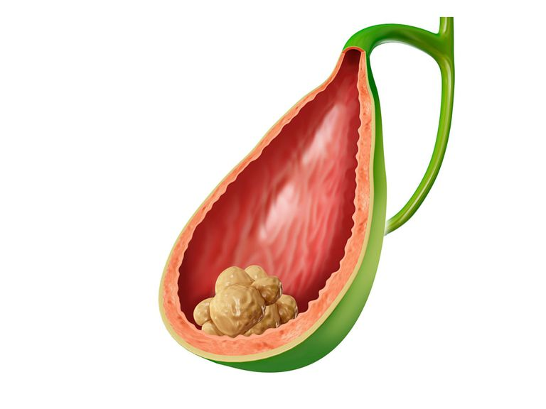 gallstones and weight loss