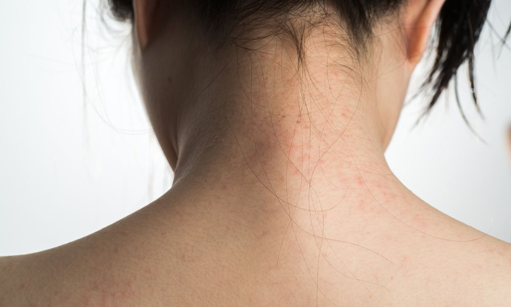 Contact dermatitis on a woman's neck