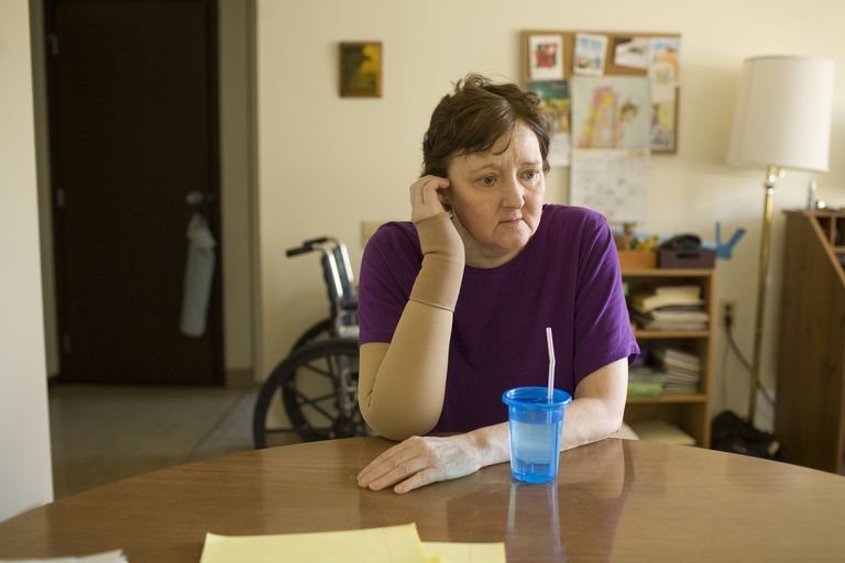 Terminal Breast Cancer Patient sits at a table