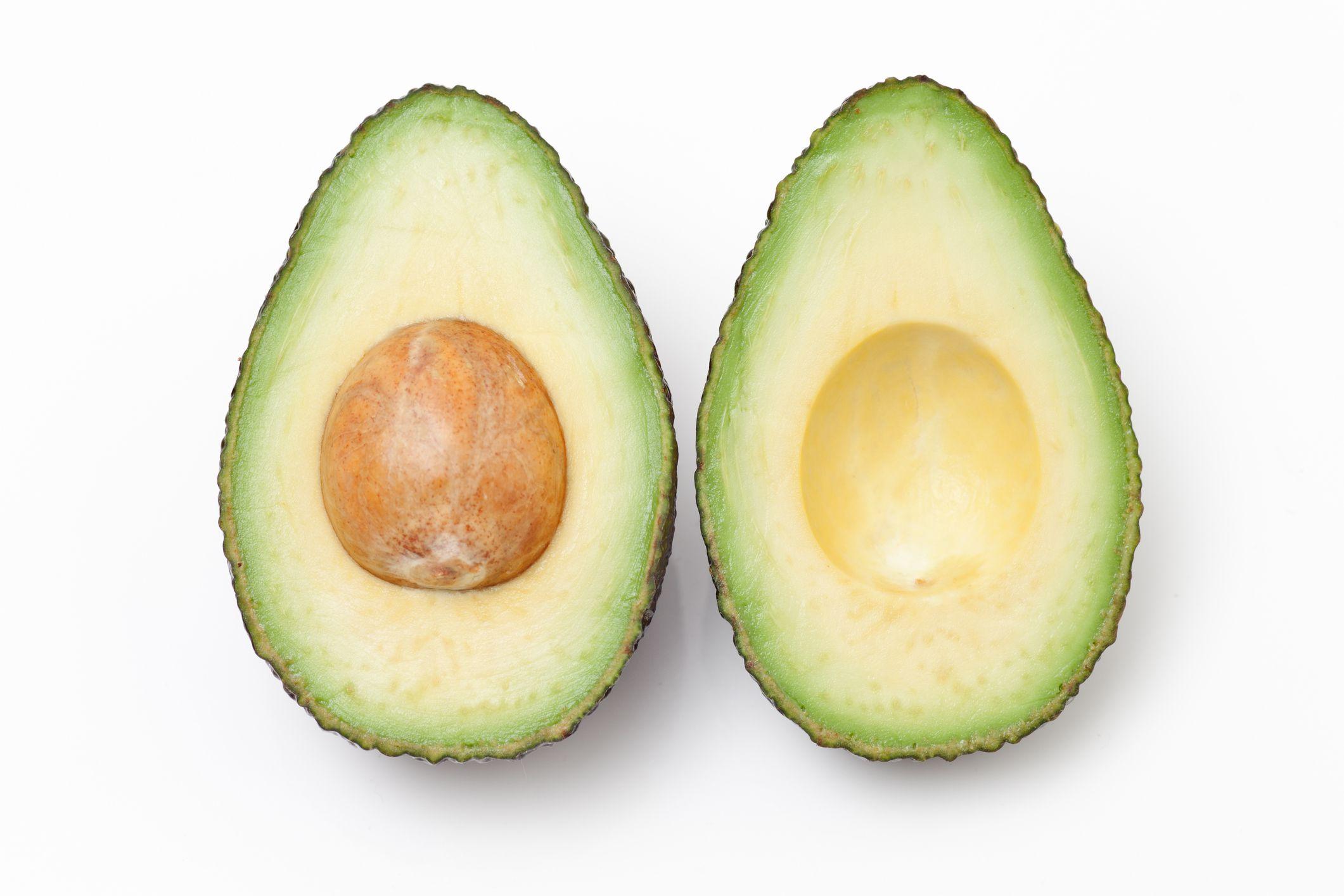 Avocado unsaponifiables