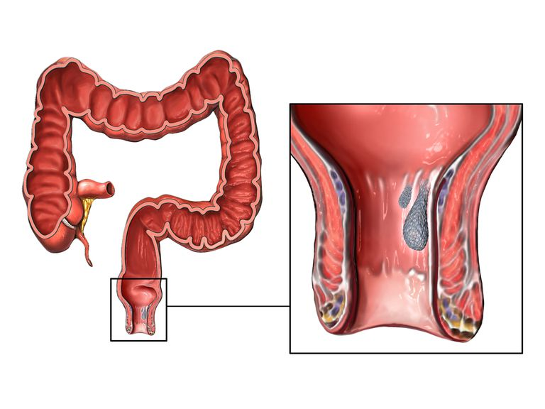 Hemorrhoids overview and symptoms for Bleeding when going to the bathroom