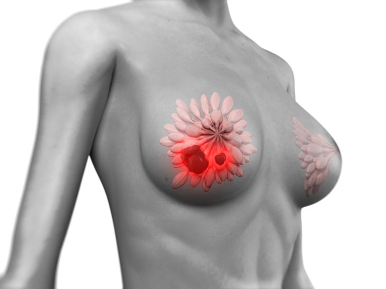 drawing of a breast with a radial scar