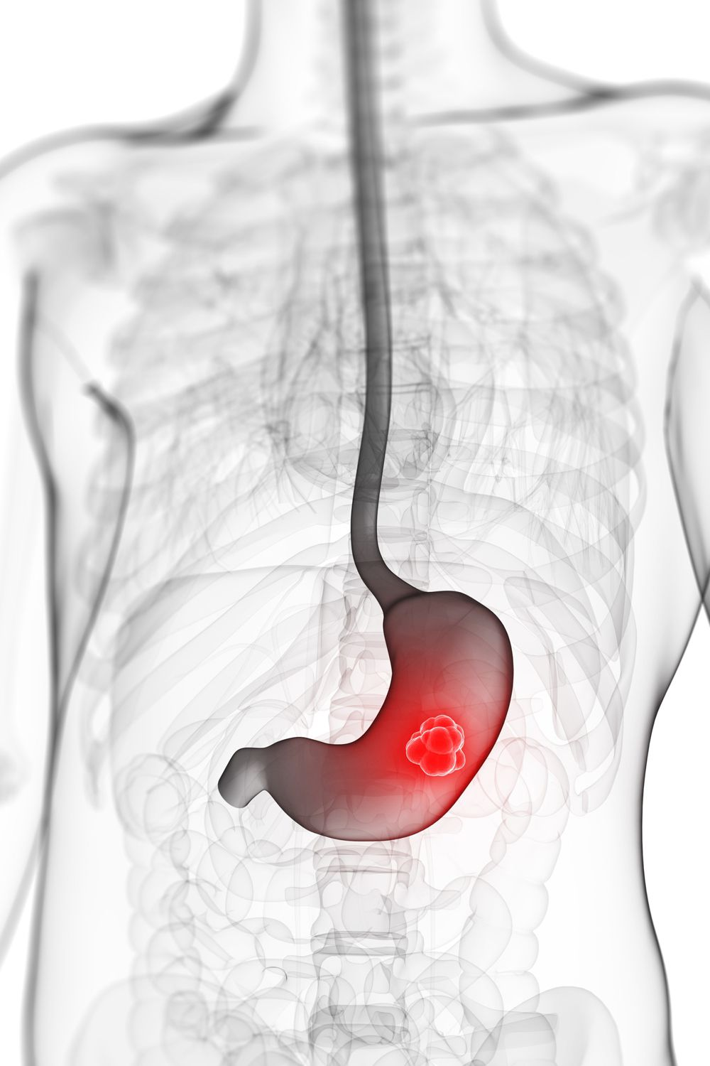 stomach cancer If you have stomach cancer or are close to someone who does, knowing what to  expect can help you cope here you can find out all about stomach cancer,.