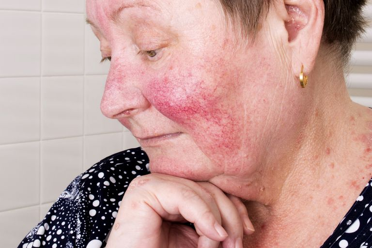 adult woman with classic rosacea rash with redness and telangiectasias