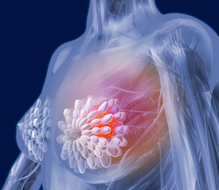 Breast cancer, artwork