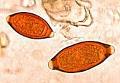 Eggs of Trichuris trichiura and Trichuris vulpis - Whipworms Credit: CDC
