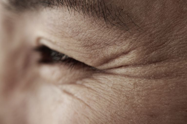 Middleage woman, skin close-up