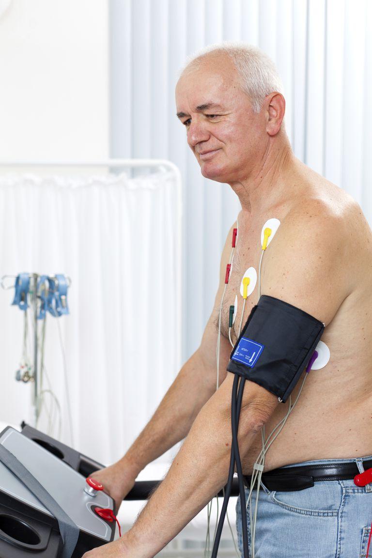 Cardiac stress test