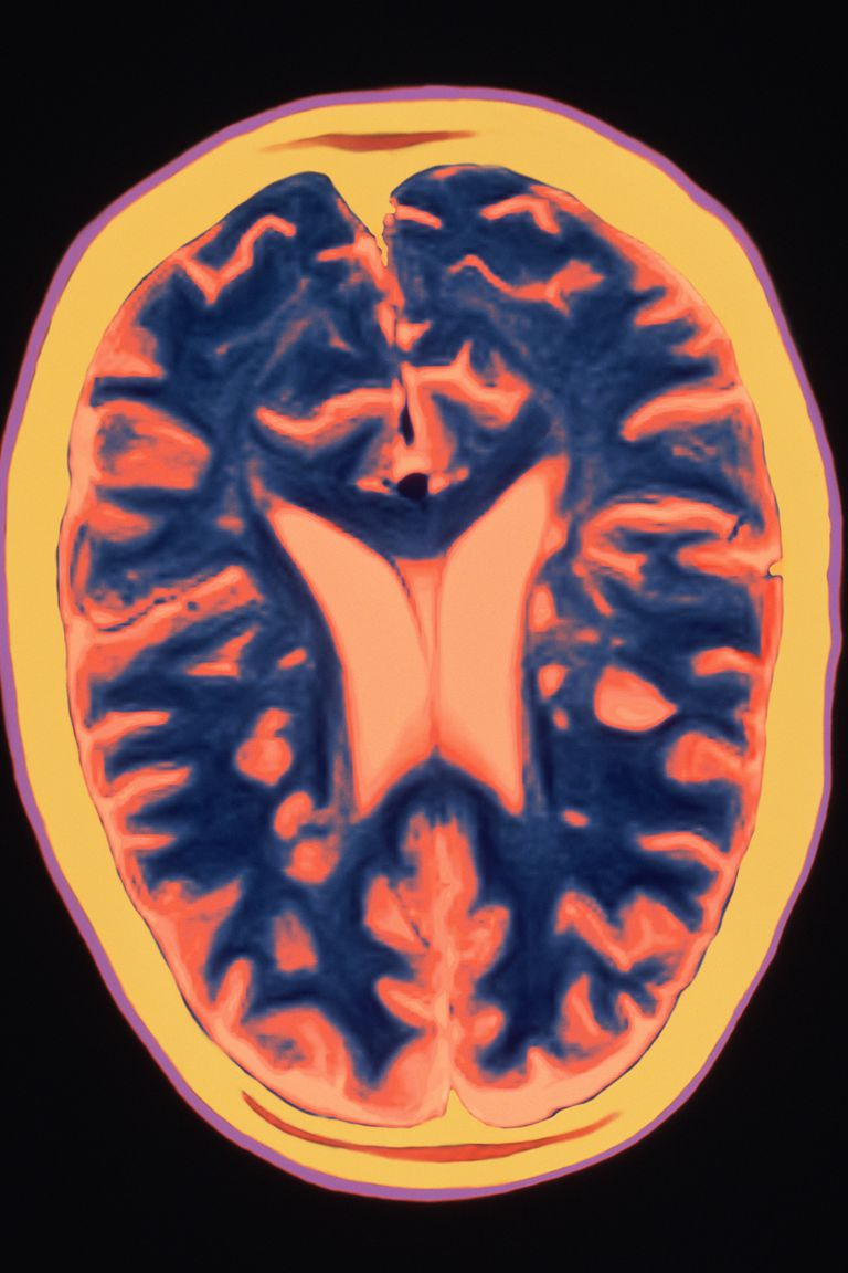 An MRI scan of a brain with multiple sclerosis.
