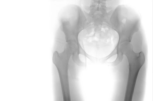 Photo of X-ray of hips and pelvis.