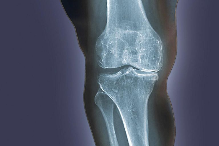Arthritis of the knee. Coloured X-ray of the knee of an obese 48 year old patient showing degenerative arthritis caused by the extreme stress on the knee from being overweight.