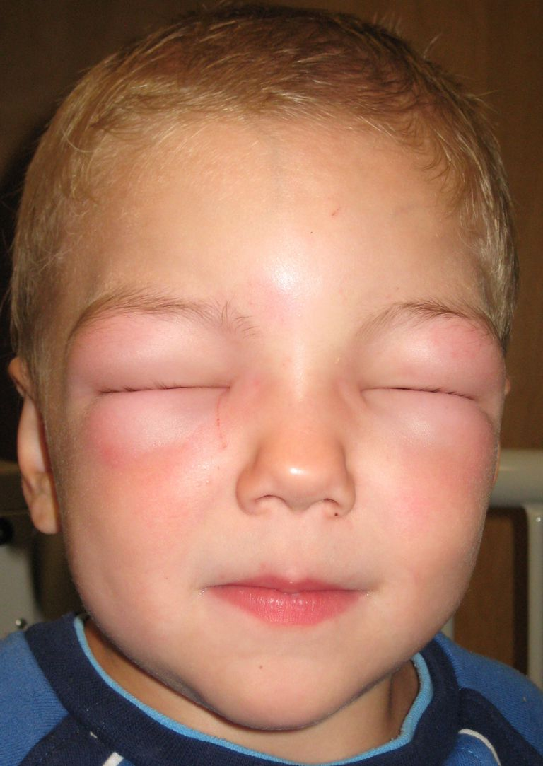 Allergic angioedema. Note that this child is unable to open his eyes due to swelling.