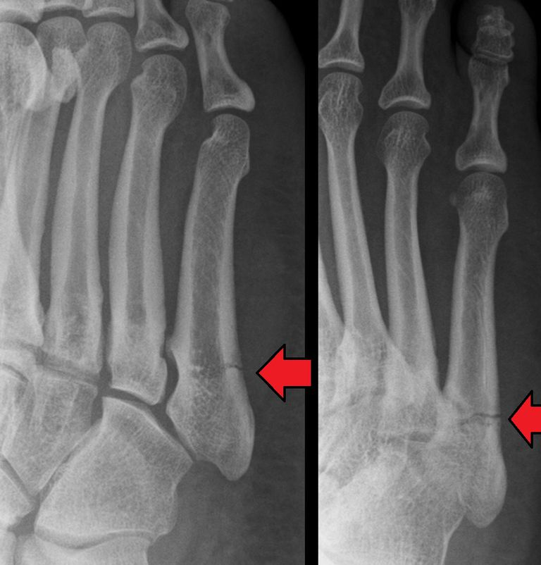 Jones Fracture as seen on X-ray
