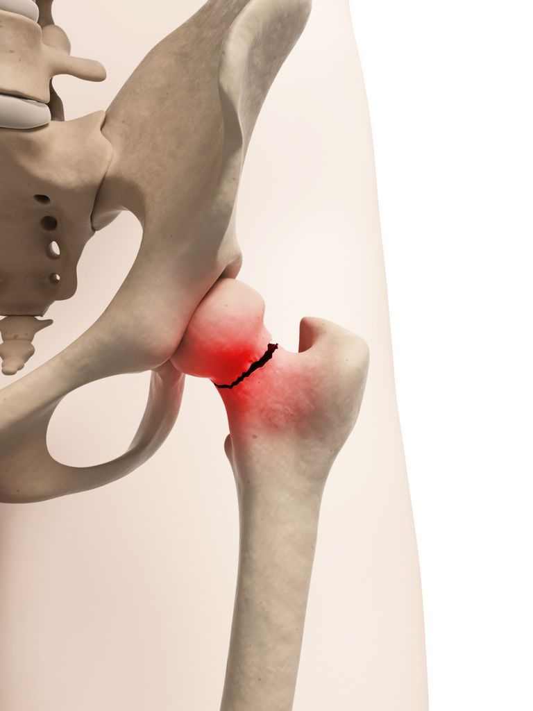 femoral neck hip fracture