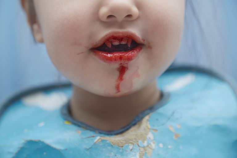 Child with bloody vampire teeth