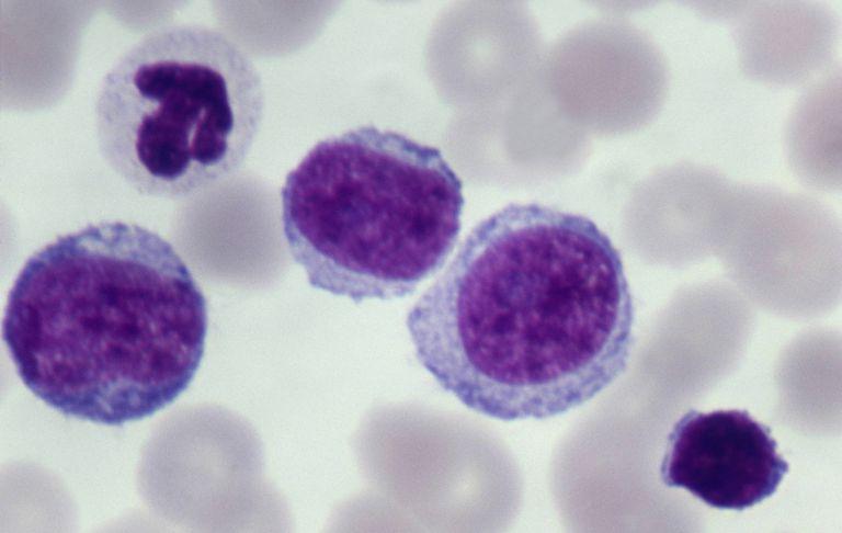 Acute leukemia cells