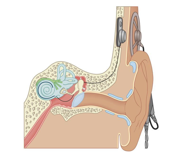 Cross section biomedical illustration of a cochlear implant