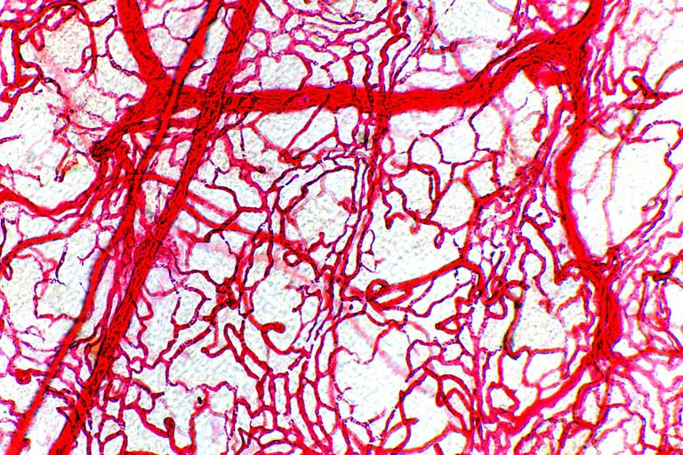 Colon blood vessels, light micrograph