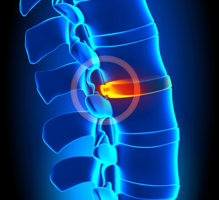 Area of a bulging disc