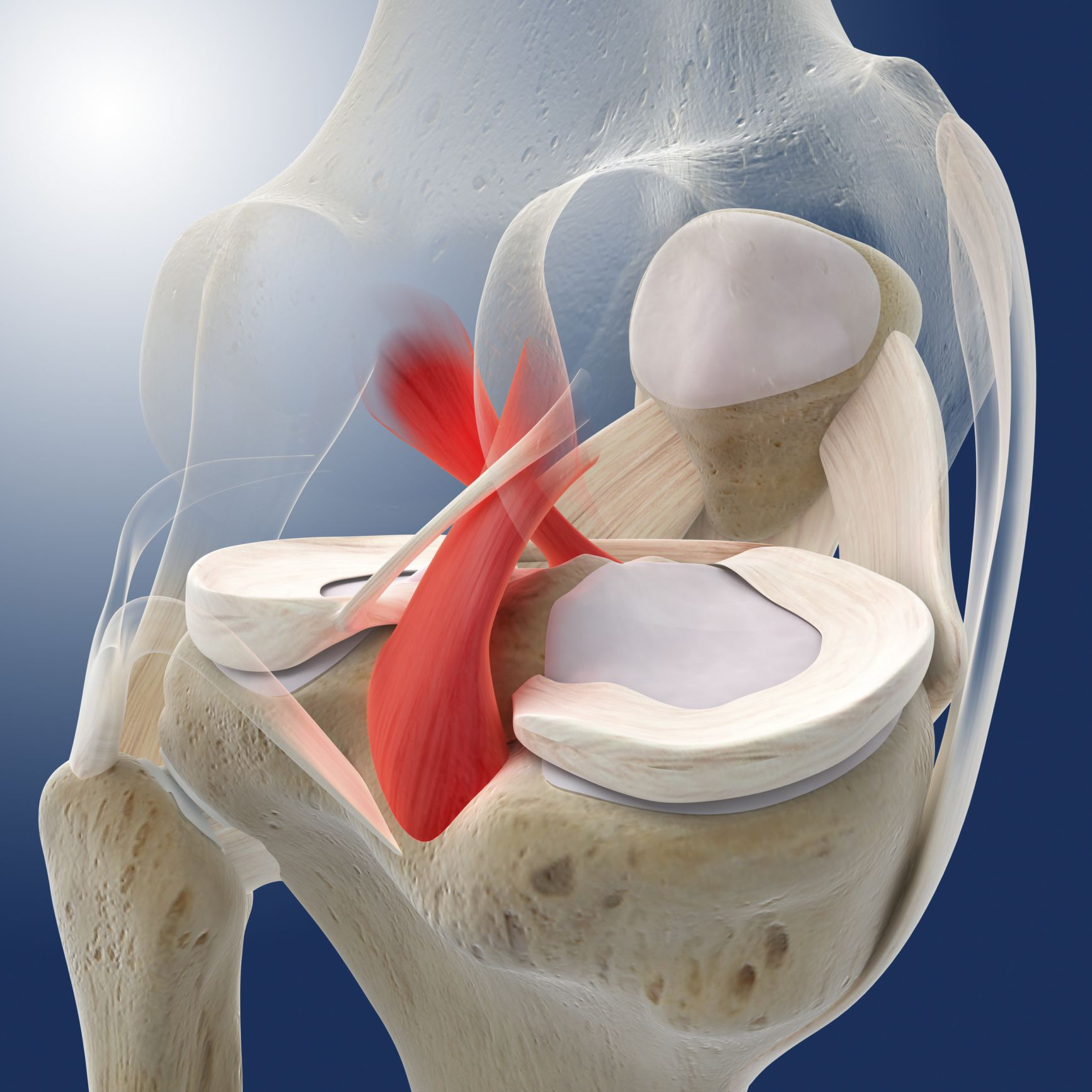 Posterior Cruciate Ligament Tears And Treatment